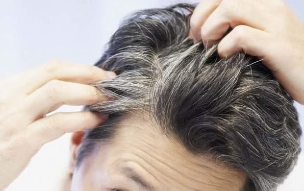 استرس باعث خاکستری شدن مو می شود
