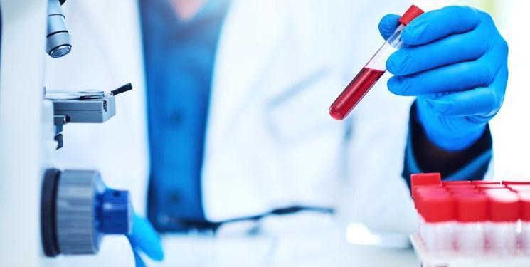 جدیدترین روش تشخیص سرطان پروستات