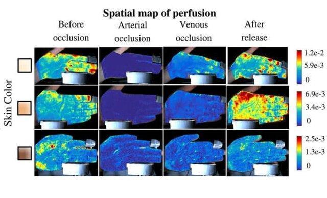 نقشه برداری از جریان خون زیر پوست با وضوح بالا