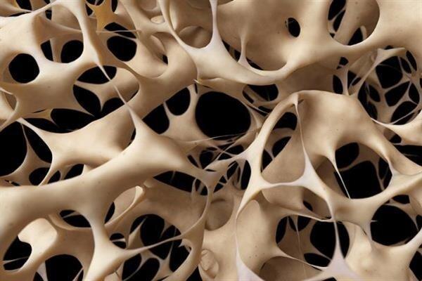 ترمیم ضایعات استخوانی با یک ساختار جدید