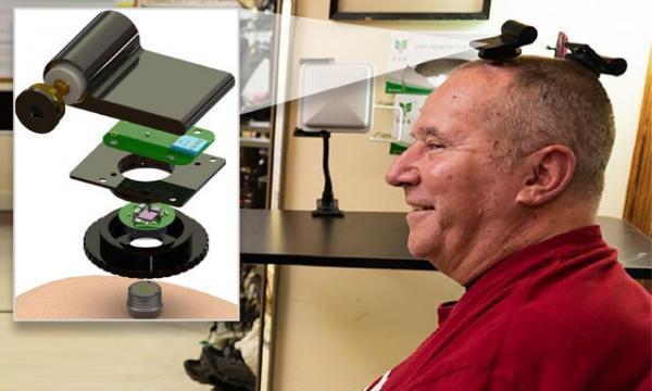 آزمایش نخستین واسط مغز و رایانه بی سیم بر روی افراد