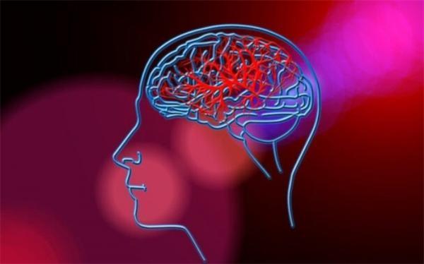 پیش بینی احتمال سکته مغزی با یک تراشه