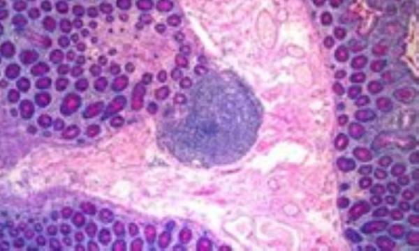 بیماری فیبروکیستیک سینه